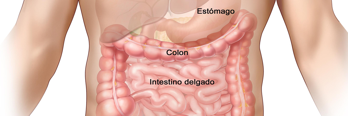 Dolor por Cáncer de Colon